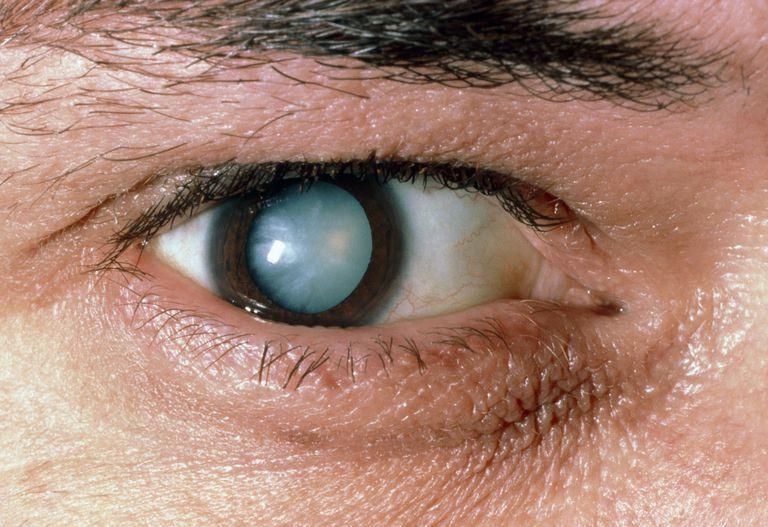 Ослеп один глаз причины и лечение thumbnail