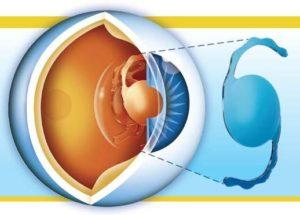 Артифакия глаза