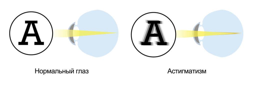 Классификация видов астигматизма