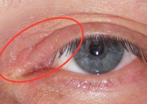 Почему болит в уголке глаза ближе к виску или носу