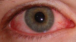 Резкое ухудшение зрения
