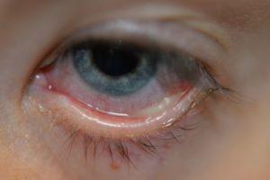 Почему при простуде гноится глаз thumbnail