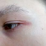 болит в уголке глаз