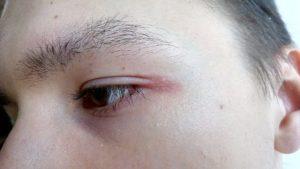 Болит внешний нижний угол глаза thumbnail