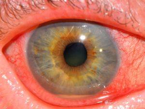 Что такое кератоувеит глаза