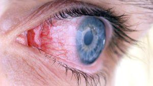 Как можно заразиться вирусным конъюнктивитом thumbnail