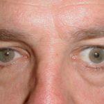 Западение глазного яблока