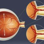 Что такое глазная гипертензия