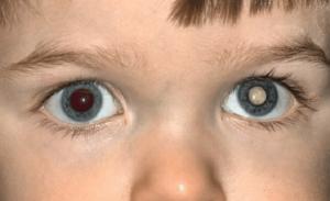Лейкокория или белый зрачок