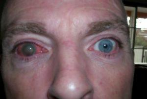 Что делать, если вытек глаз у человека