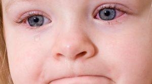 Сухость глаз причины и лечение у детей thumbnail