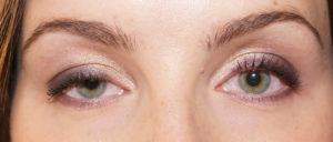 Почему один глаз ниже другого