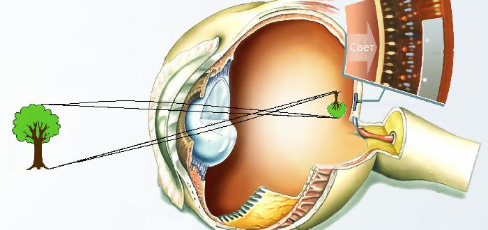 Рефракция глаза