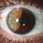 Пятна на радужной оболочке глаза