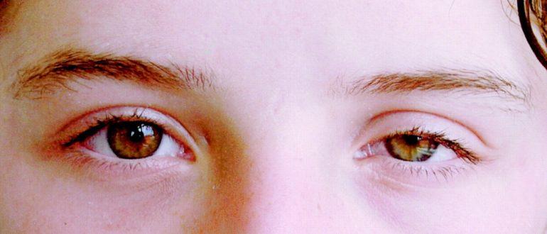 Почему глаз не открывается полностью