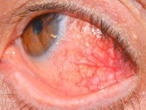 Склерит - причины, симптомы, лечение, фото