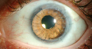 Дистрофия роговицы глаза что делать thumbnail