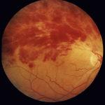 тромбоз центральной вены