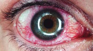 Что такое увеит глаза
