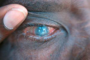 Что такое трахома глаз