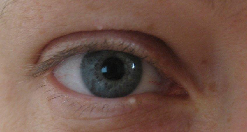 Атерома (новообразование) на веке глаза