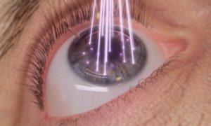Лазерная коррекция зрения методом ФРК