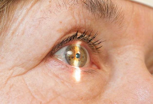 Покраснение глаз при простуде у детей