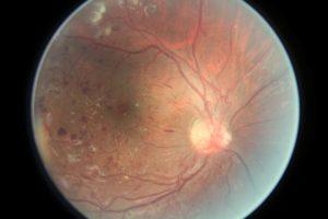 Как восстанавливается сетчатка глаза thumbnail