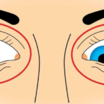 Гимнастика для глаз при катаракте