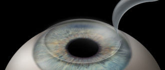 Лазерная коррекция зрения методом Lasik (Ласик)