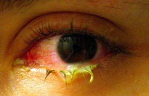 Почему гноятся глаза после бани