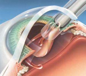 Интракапсулярная и экстракапсулярная экстракция катаракты