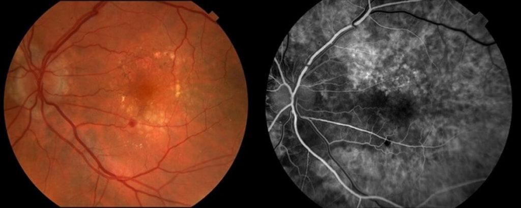 агниопатия сетчатки глаза