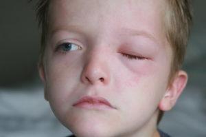 Что такое блефарит у детей