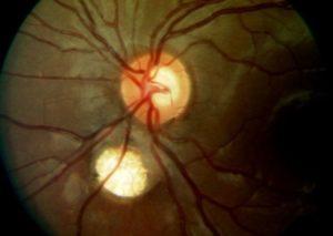 Реваскуляризация зрительного нерва