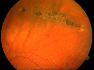 Дистрофия сетчатки глаза следы улитки thumbnail