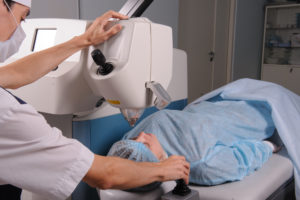 Астигматизм и лазерная коррекция зрения