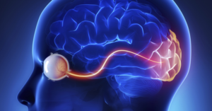 интрабульбарный неврит