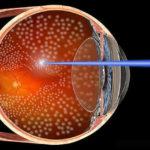 Лазерная коагуляция сетчатки глаза при беременности