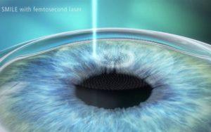 Лазерная коррекция зрения Смайл (Relex Smile)