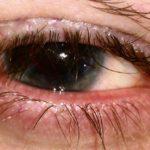 Мейбомиевый блефарит - что это, симптомы и лечение