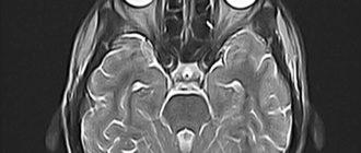 Компьютерная томография глаза