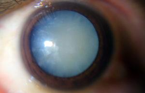 Перезрелая катаракта