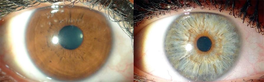 Изменение цвета глаз лазером