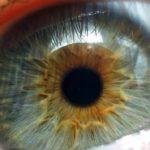 Истончение сетчатки глаза