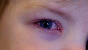 Почему у ребенка красные глаза - что делать