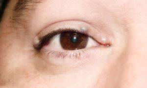 Шишки на веке глаза как лечить 27