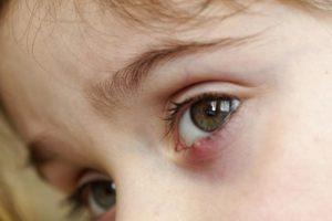 Чирей на глазу у ребенка