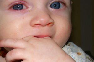 Почему у грудничка красные глаза