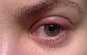 глаз красный